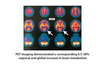 Hyperbaric oxygen therapy for Alzheimer's dementia with positron emission tomography imaging: a case report.